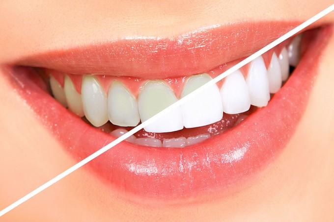 Белоснежная улыбка: лучшие способы отбеливания зубов