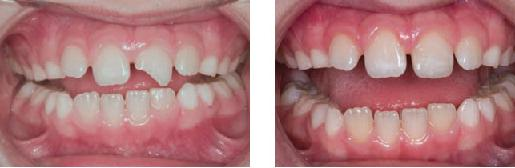 Реставрация сломанного переднего зуба композитами
