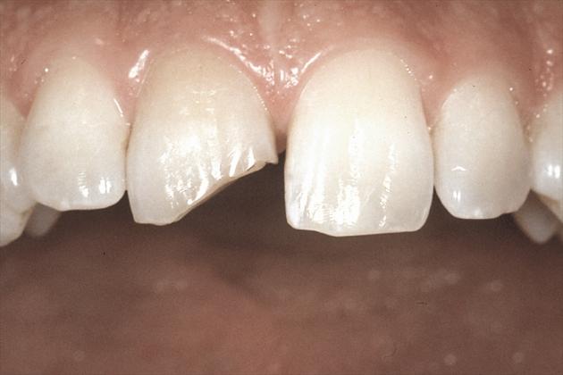 Сломанный передний зуб