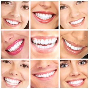 otbelivanie-zubov-beyond-12-small-300x300