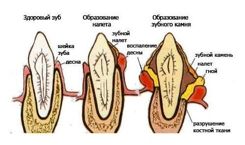 udalenie-zubnogo-kmnya