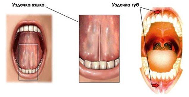 zubnyie-uzdechki