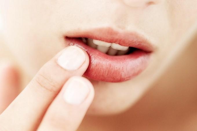 Лечение стоматита эффективно и быстро