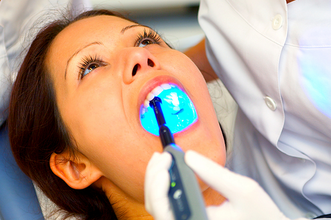 Фторирование. Укрепление зубов. Профилактика кариеса