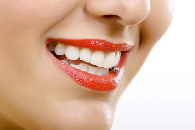 Причины возникновения пигментных пятен на зубах