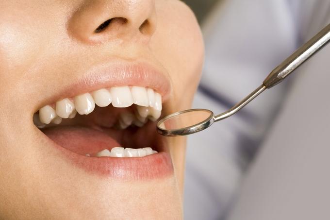 Профессиональное отбеливание зубов — Ваша безупречная улыбка