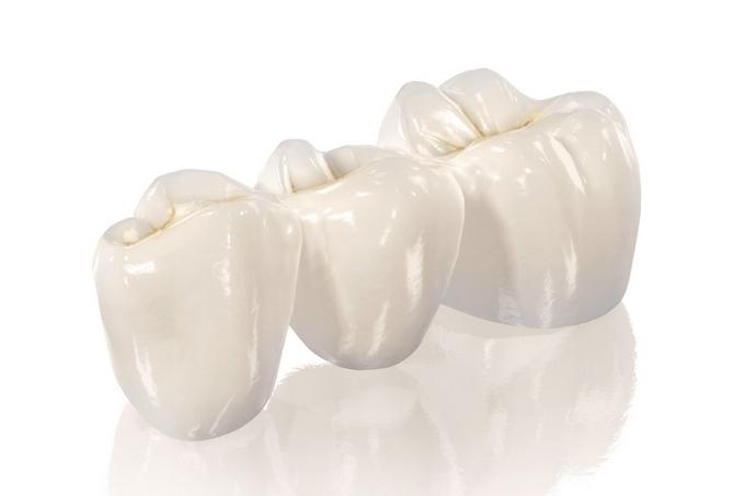 Зубные коронки, что это, классификация. Какие зубные коронки лучше