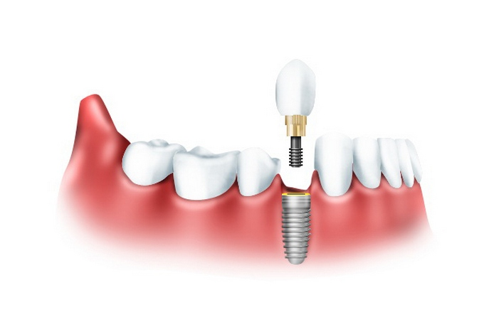 Система Kontakt — ультрасовременная имплантация зубов