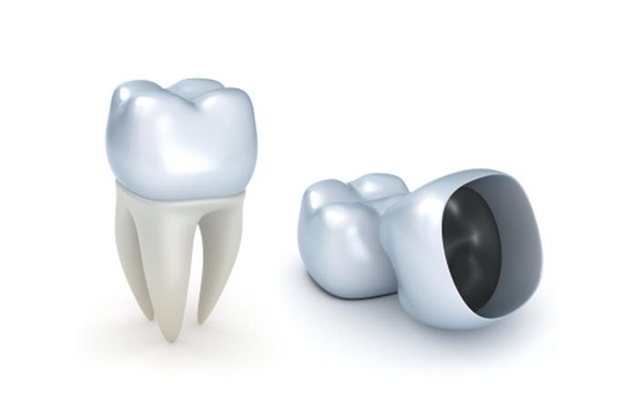 Выбираем лучшие зубные коронки