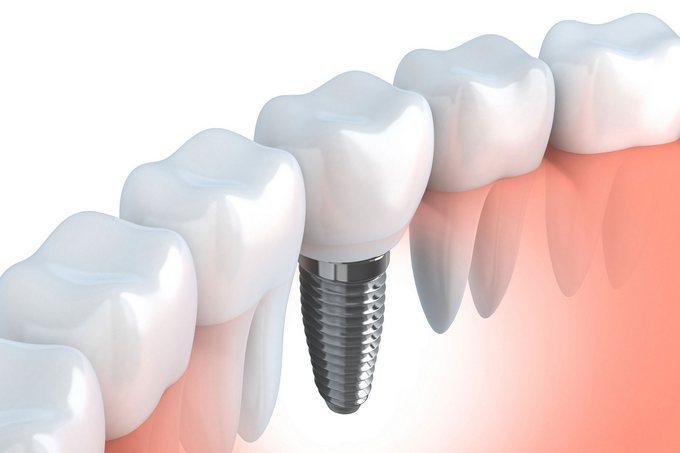 Инновации в области протезирования зубных рядов