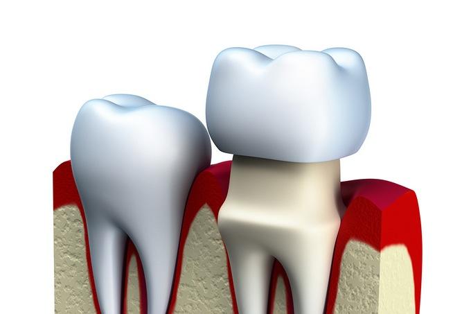 Стоматология. Виды зубных коронок