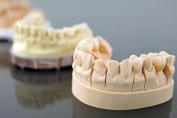 Какие бывают способы протезирования зубов