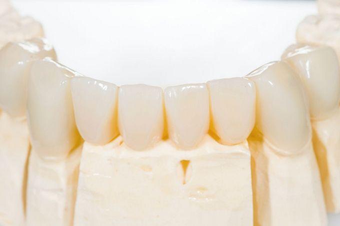 Ортопедическая стоматология: современное протезирование зубов