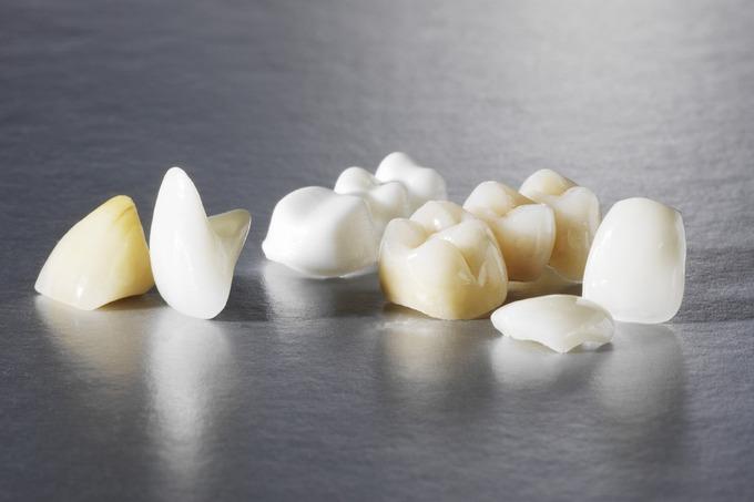 Современные зубные коронки и их преимущества