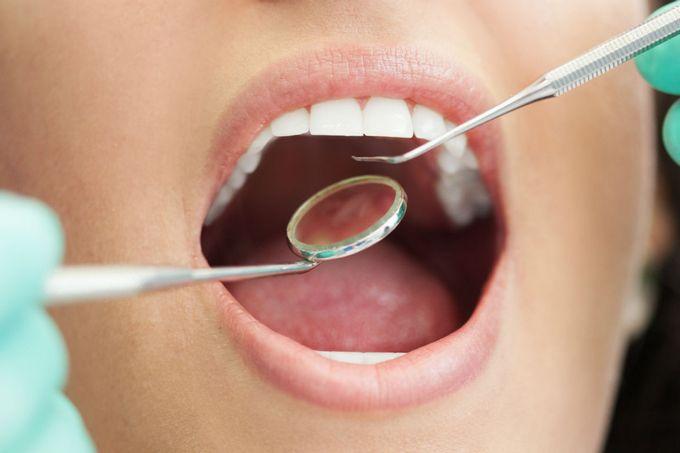 Трещины на эмали зубов, как бороться с трещинами на зубной эмали