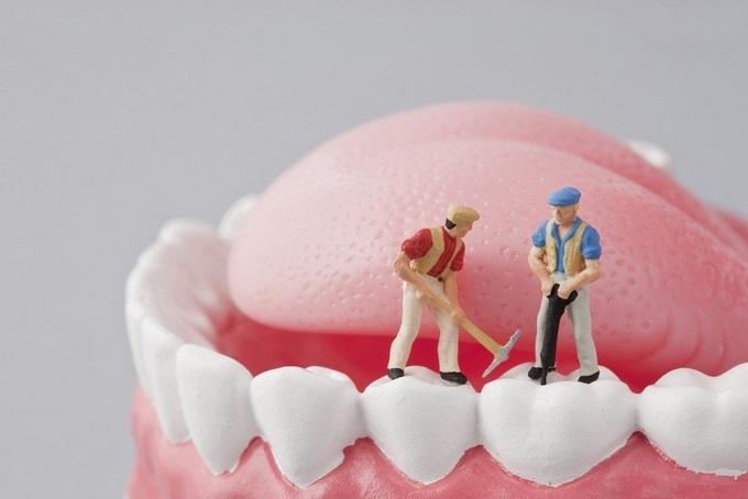 Реставрация зубов: люминиры и виниры