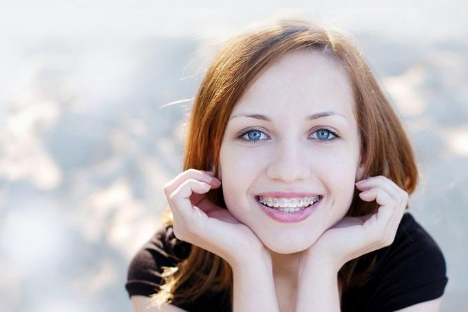 Лучшие брекет-системы для идеальной улыбки