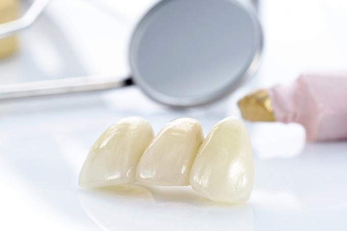 Зубные коронки: преимущества и недостатки