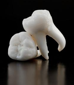 Zub-mudrosti-krasivy-j