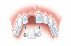 protezirovanie-perednih-zubov-300x195