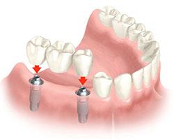 protezirovanie_zubov_na_implantah