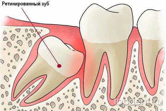 retinirovannyj-zub1